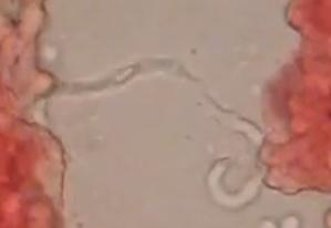 microfilaria in blood